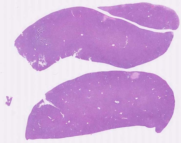 Pathology Image Detail